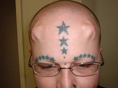 Starfish implanted on forehead