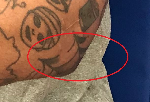 Mike Scott Spiderweb on left Elbow