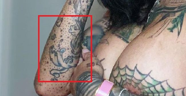 Arm-Tattoo-Bonnie-Roten
