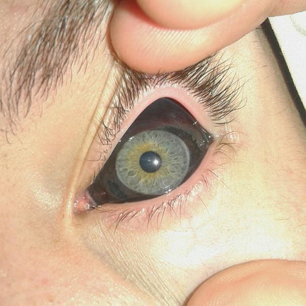 eyeball tattoo ideas