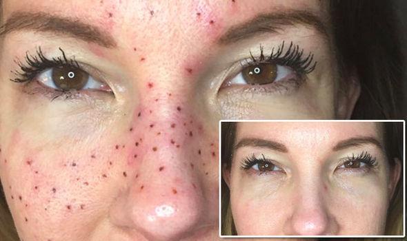 freckles tattoos 8
