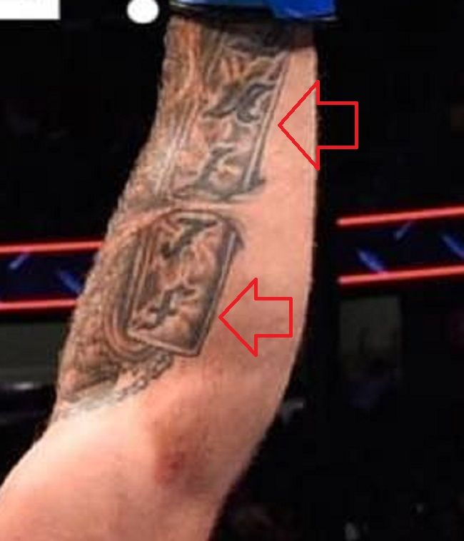 left forearm of mike perry