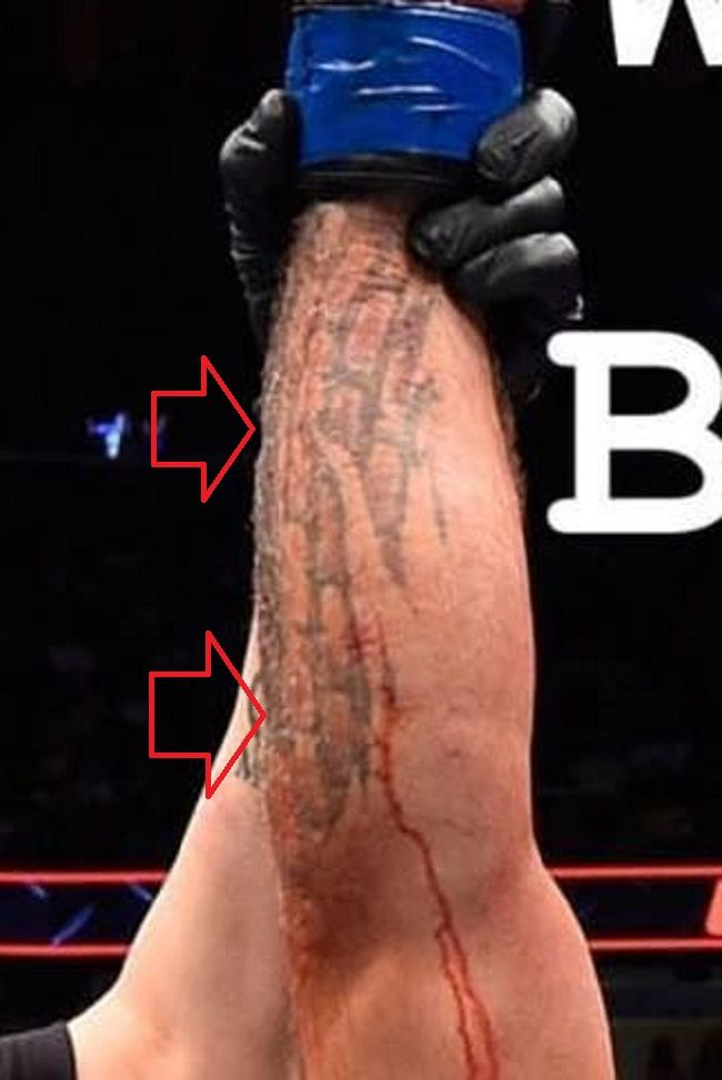 right forearm mike perry