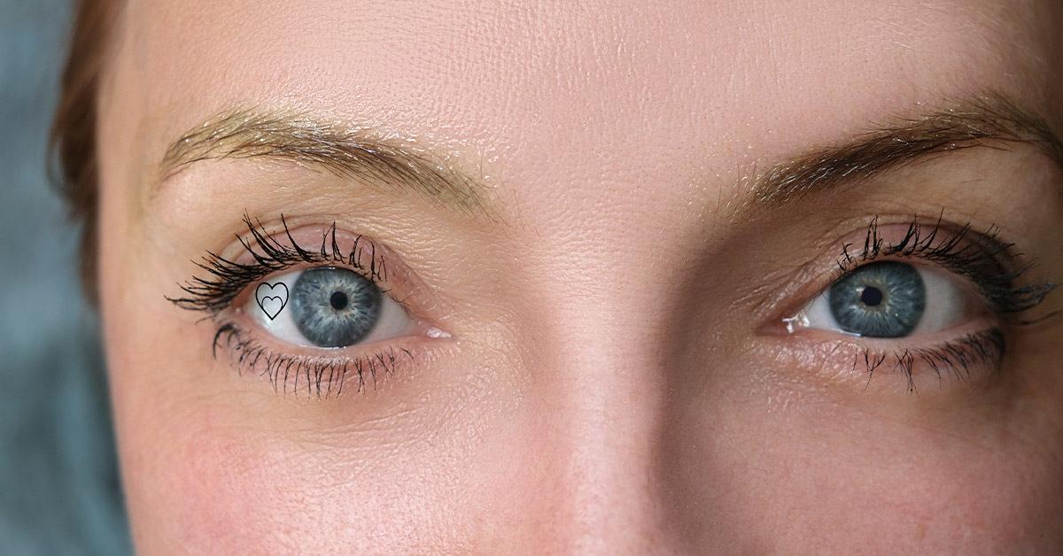 Eye Implant 3