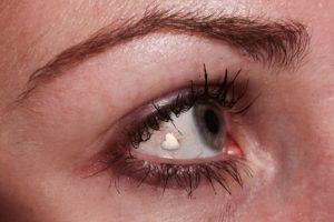 Eye Implant 4