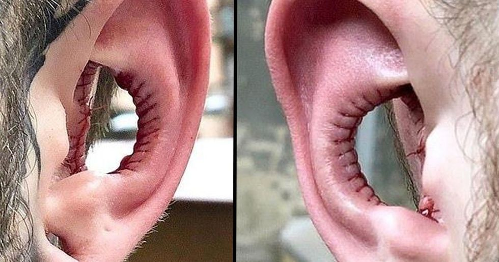conch removal