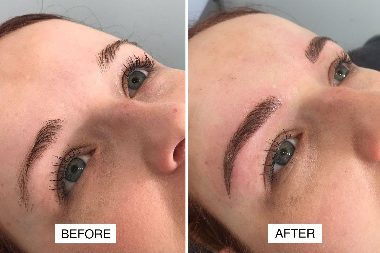 Eyebrows Micropigmentation