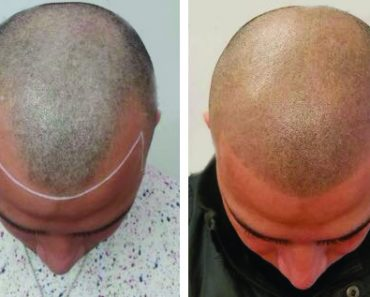 Micropigmentation for Hair